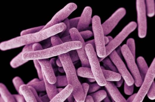 Desarrollan primer fármaco no antibiótico contra tuberculosis